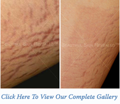 Stretch Marks Treatment Houston Texas (TX) New York (NY)