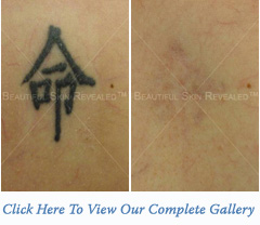 Removal Tattoos on Tattoo Removal Houston Texas  Tx  New York  Ny