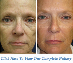 Sculptra Dermal Filler Houston Texas New York City New York