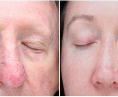 Red Nose Veins Study