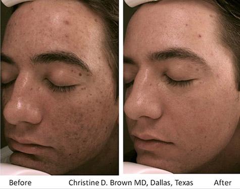Skin Microneedling Eclipse MicroPen Houston TX