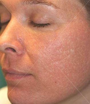 Houston Cosmetic Dermatology & Laser Center | Paul Friedman MD