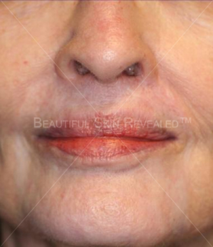 Scar Reduction Removal Houston Tx